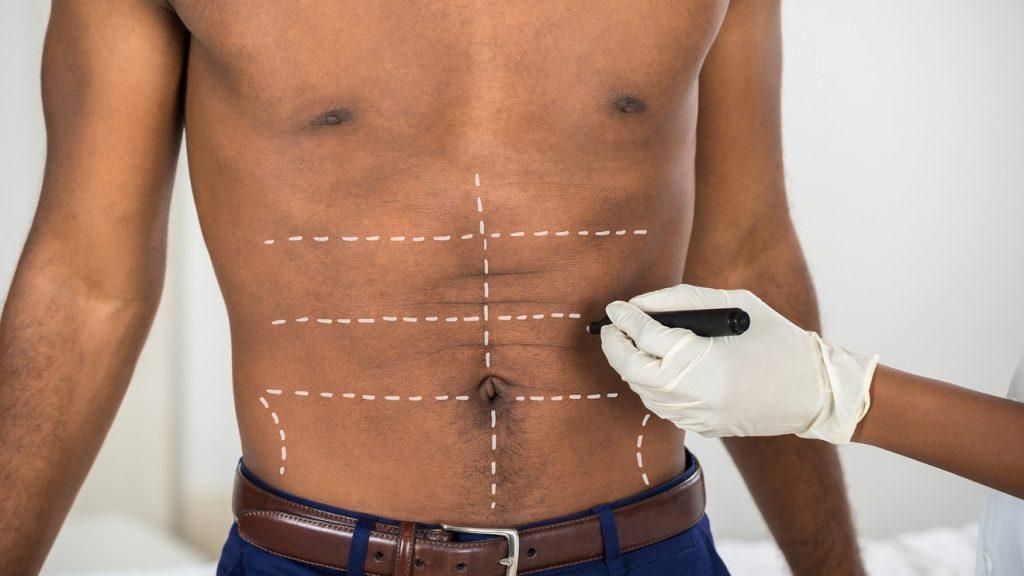 abdominoplastia para hombres